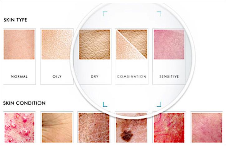 Skin Explained