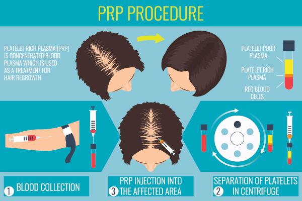 PRP information