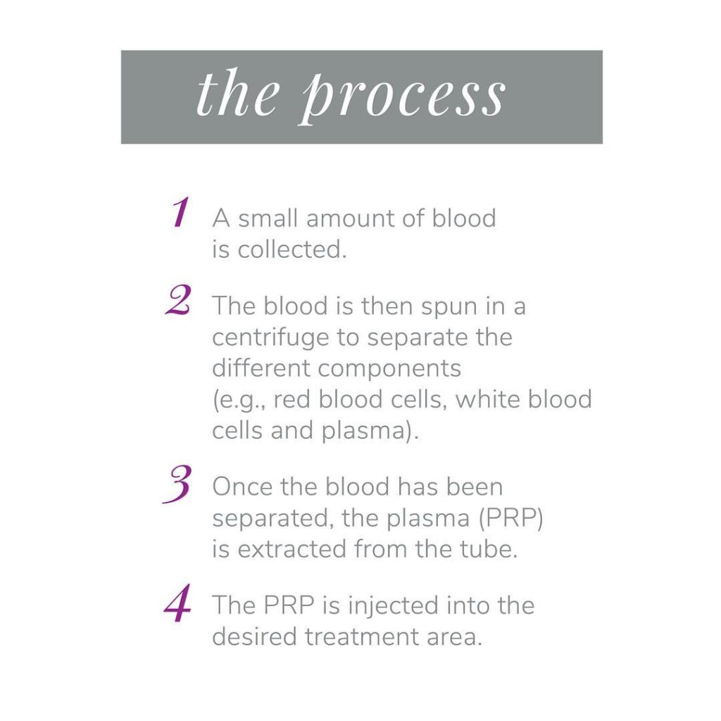The Process for PRP